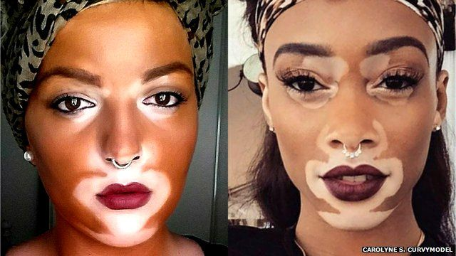 White lady wearing makeup to look like model Winnie Harlow who has vitiligo (also pictured)