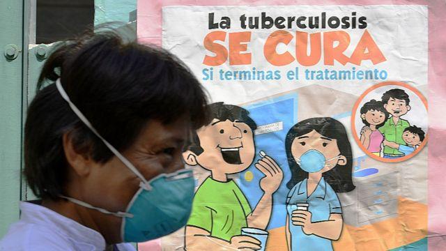 """Una persona en Perú pasa frente a un cartel que dice """"la tuberculosis se cura""""."""