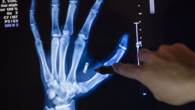 An x-ray of a hand with a microchip implanted