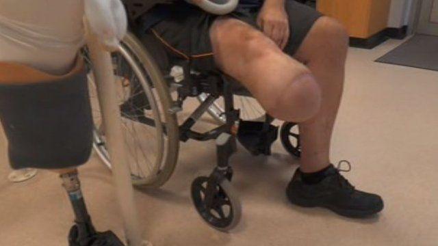 dolor en la parte inferior de la pierna y diabetes