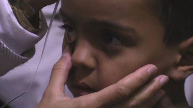 Un niño es sometido a una revisión en una clínica en Madaya