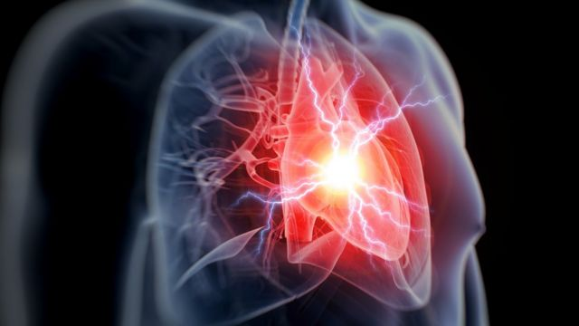 One-off genetic test could detect heart attack risk