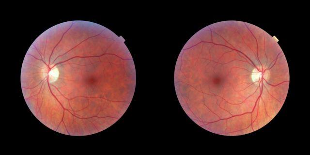Сетчатки правого и левого глаза человека