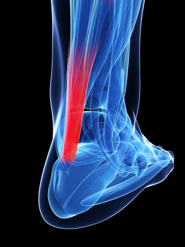 Radiografía de un tobillo