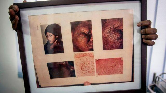 Dans ce cadre, un médecin affiche des images d'une femme souffrant d'un désordre cutané dû à une application prolongée de produits éclaircissants pour la peau à l'hydroquinone.