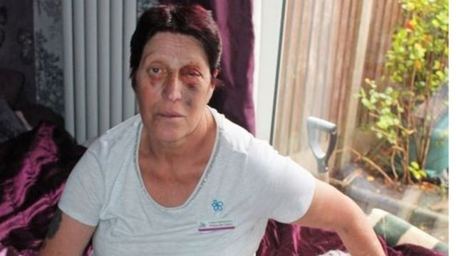 Joy Watson: Woman with dementia punched in face