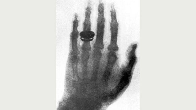 Открытие рентгеновских лучей в 1895 году стало международной сенсацией