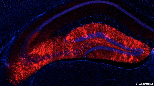 labelled brain cells in hippocampus