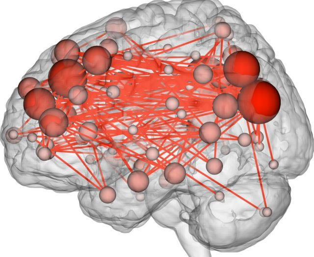 Brain's activity map makes stable 'fingerprint'