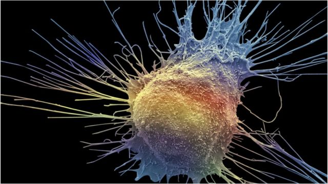 Prostate cancer treatment 'could help more patients'