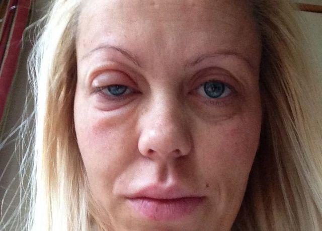 Malene de rosto inchado