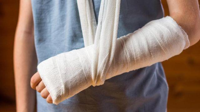 kemik kırılması sümük qırılması sümüklərdə kalsium çatışmazlığı