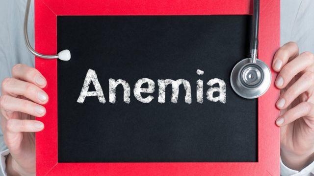 """Señal que dice """"Anemia"""""""