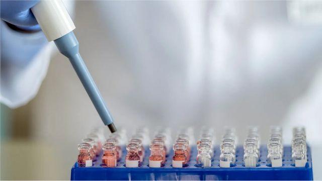 Una prueba de laboratorio