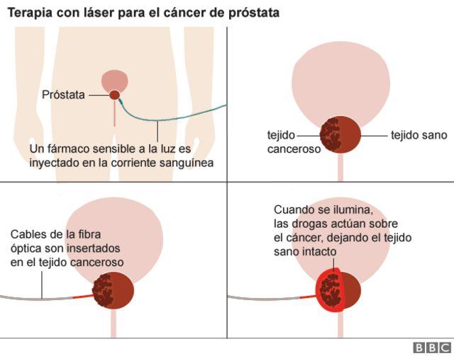 Cancer de prostata sintomas iniciais, Cancer de colon operacion complicaciones