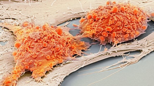 NHS starts 'stem cell factory' for diabetes