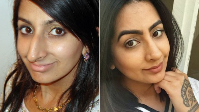 Sharon Dhaliwal, before and after rhinoplasty