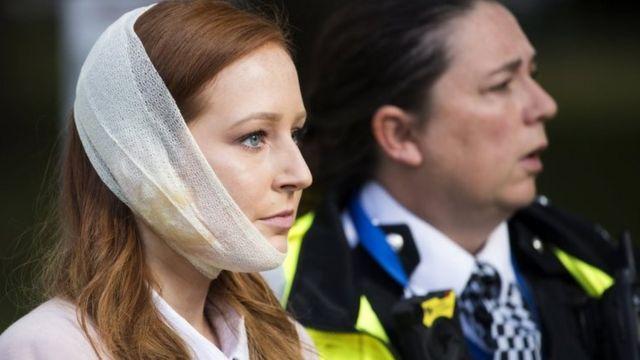 Una mujer con una venda en la cara