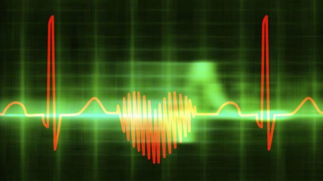 Юрак кардиограммаси
