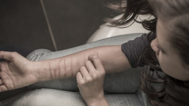Jovem machuca o próprio braço