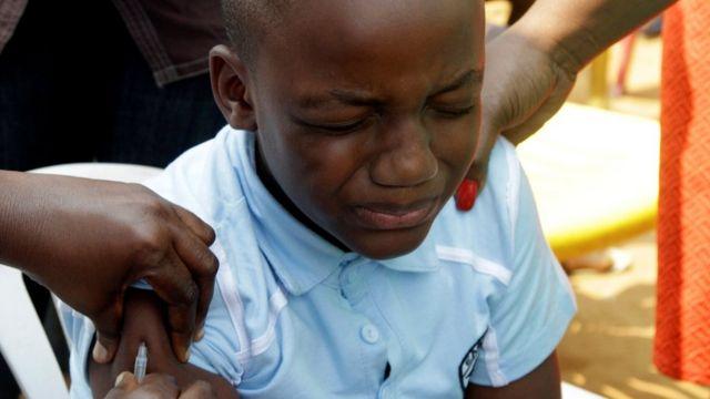 طفل من الكونغو يحصل على اللقاح