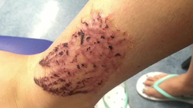 Warning over black henna tattoos - BBC News