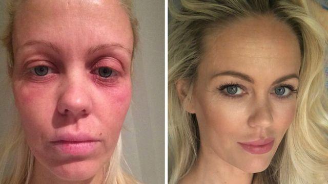 Malene após o transplante e antes