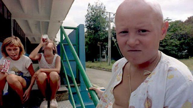 Niño de Chernóbil en Cuba