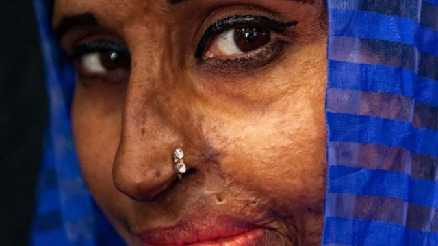 Asit saldırısına uğrayan bir kadın