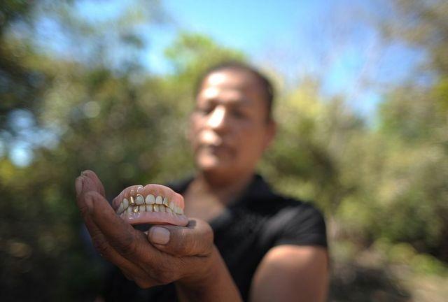 Míriam Núñez de Márquez muestra la dentadura postiza de su madre, víctima de la masacre de El Mozote.
