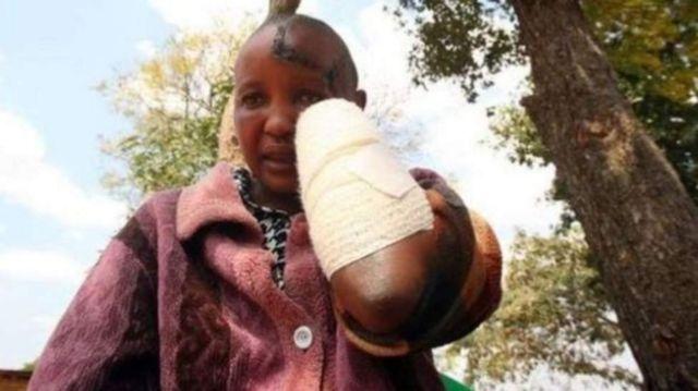 Jackline Mwende alikatwa mikono na mumewe