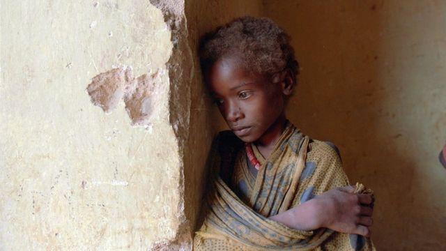 طفل صومالي