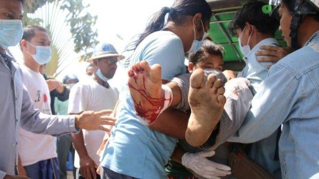 Один из раненых демонстрантов в Янгоне