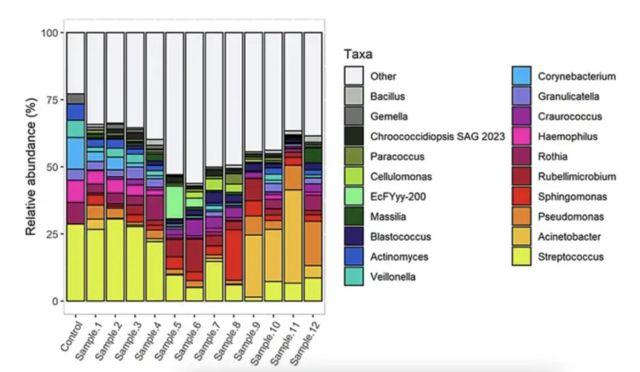 Dinámica de la variación de las comunidades microbianas