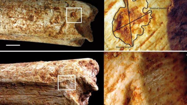 بقايا عظام بشرية