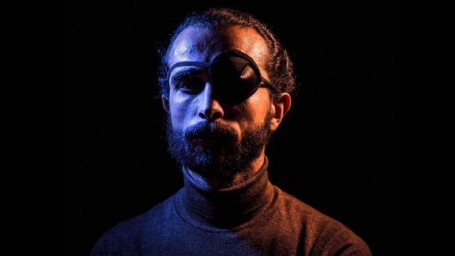 """أحمد فقد عينه أثناء مشاركته في """"جمعة الغضب"""" في يوم 28 يناير"""