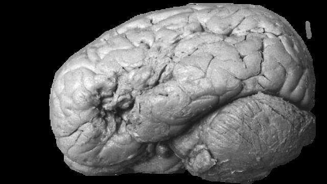 El cerebro de Monsier Leborgne