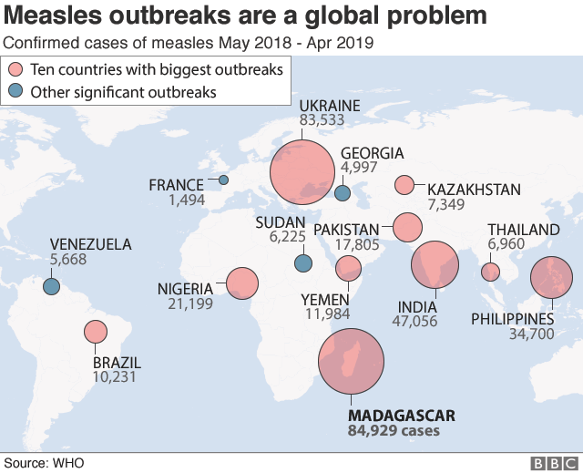 World map of largest measles outbreaks in past year