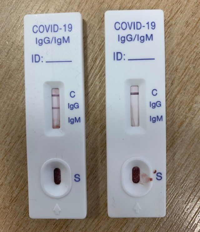 Two antibody tests - one positive one negative