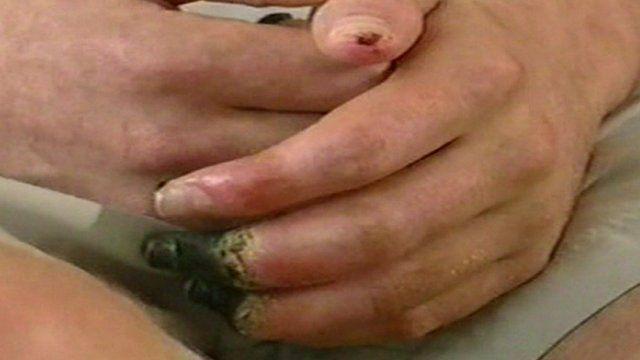 Hand of patient