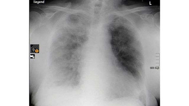 Raio X mostra pulmões esfumaçadoes