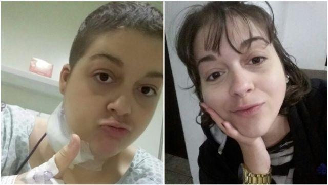 Júlia Masculi antes e depois do tratamento