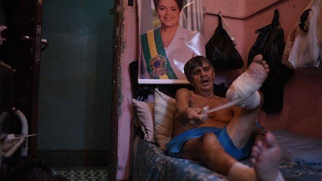 lepra en Brasil
