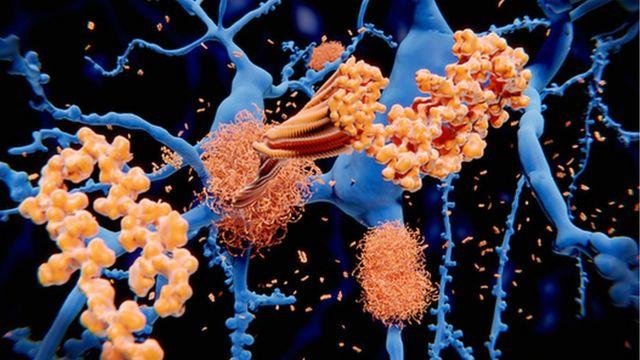 设计图片:淀粉样蛋白斑块在脑内积聚
