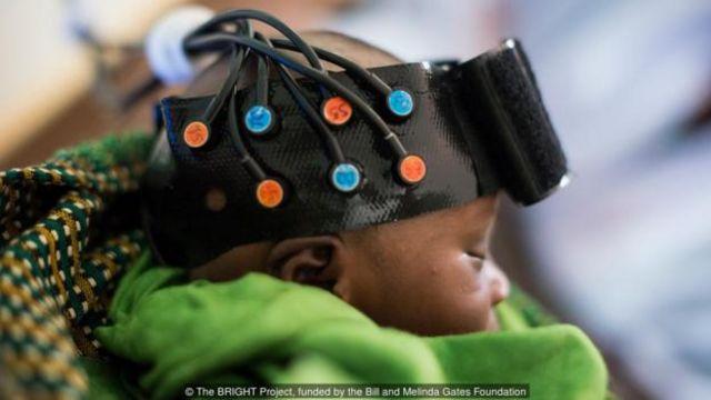 Bebê usa apacete de aparência futurista