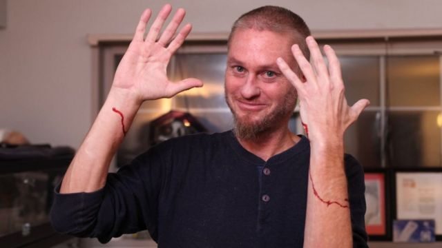 Tim Friede's both the arms are bleeding after bitten by snakes