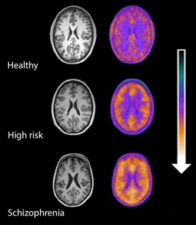 Immune clue to preventing schizophrenia