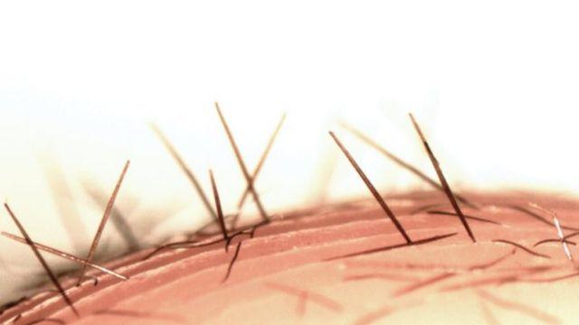 Las setas (pelos) urticantes