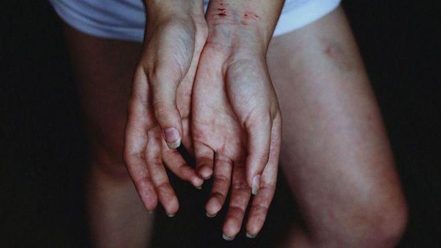 руки жертвы насилия