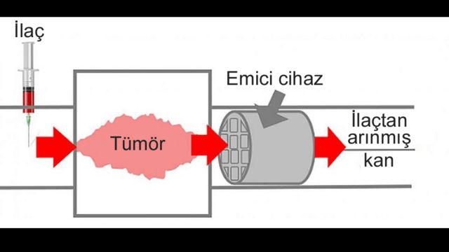 kemoterapi emici cihaz